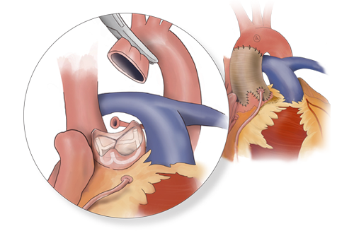 Read more about Aortic Root Restoration