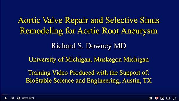 Aortic Valve Repair and Selective Sinus Remodeling for Aortic Root Aneurysm