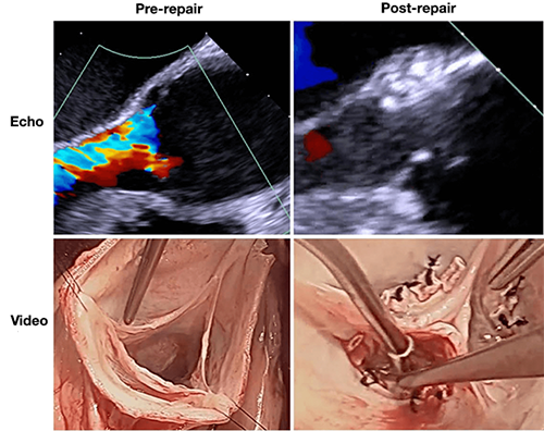 Echocardiographic and video images of the aortic valve before and after the repair